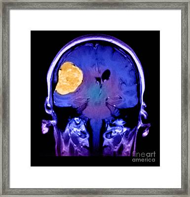 Right Sided Meningioma Framed Print by Medical Body Scans