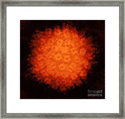 Varicella-zoster Virus Framed Print by Science Source