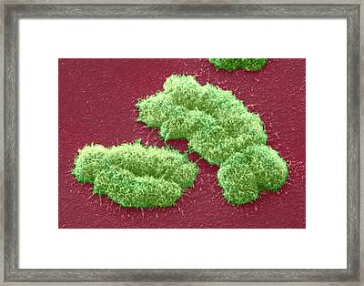 Human Chromosomes, Sem Framed Print by Power And Syred