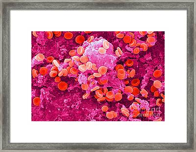 Red Blood Cells, Sem Framed Print by Science Source