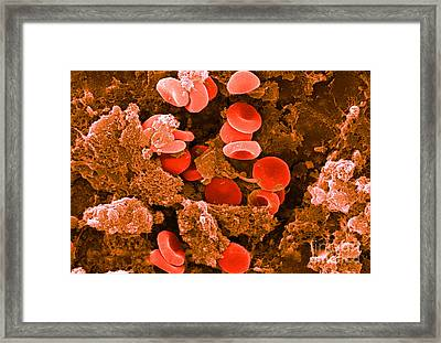 Red Blood Cells, Sem Framed Print by Science Source