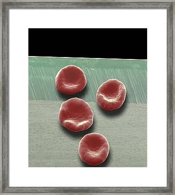 Red Blood Cells, Sem Framed Print by Steve Gschmeissner