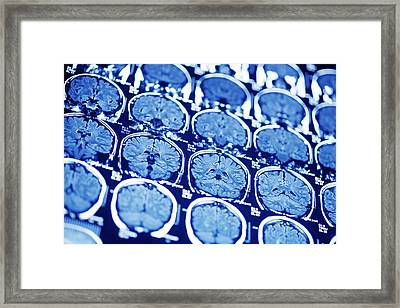 Brain Scans, Mri Scans Framed Print by Pasieka