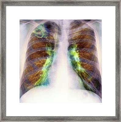 Drug Use Lung Damage, X-ray Framed Print