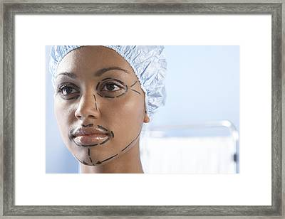 Facelift Surgery Markings Framed Print by Adam Gault