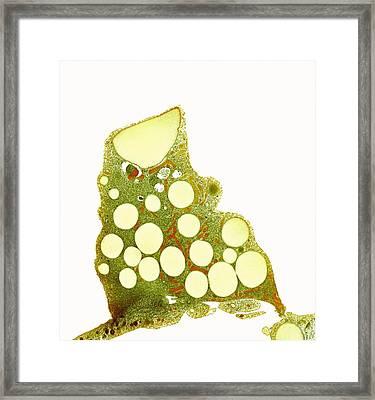 Fat Cells, Tem Framed Print by