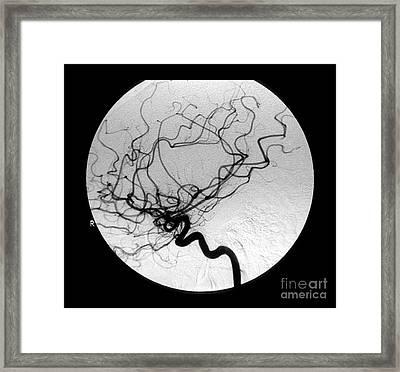 Internal Carotid Cerebral Angiogram Framed Print by Medical Body Scans