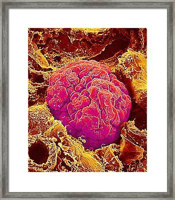 Kidney Glomerulus, Sem Framed Print by Susumu Nishinaga