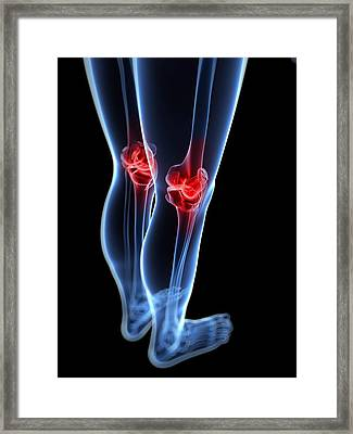 Knee Pain, Conceptual Artwork Framed Print by Sciepro