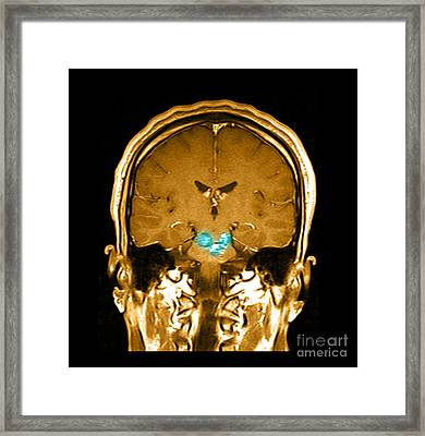 Mri Brainstem Cavernous Malformations Framed Print by Medical Body Scans