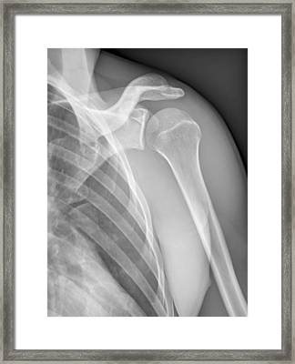 Normal Shoulder, X-ray Framed Print by Zephyr