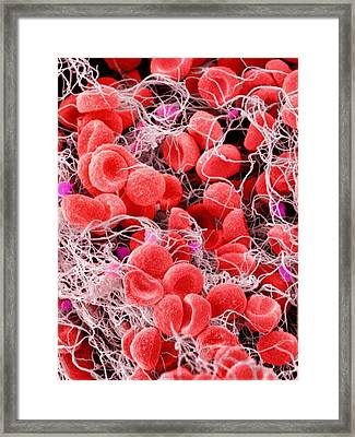 Blood Clot, Sem Framed Print by Susumu Nishinaga