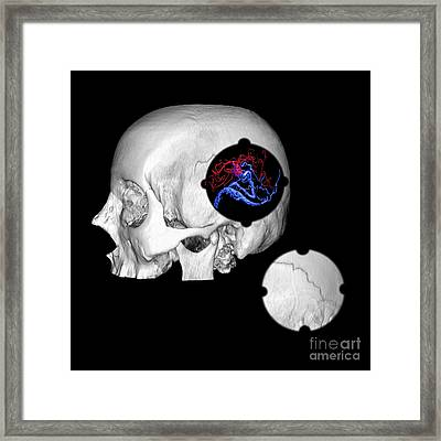 3d Color Enhanced Image Of Skull And Avm Framed Print by Medical Body Scans