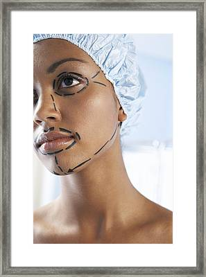 Facelift Surgery Markings Framed Print by Adam Gault