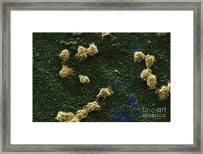 Hartmannella Vermiformis Sem Framed Print