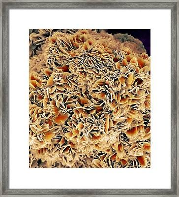 Kidney Stone Crystals, Sem Framed Print by Steve Gschmeissner
