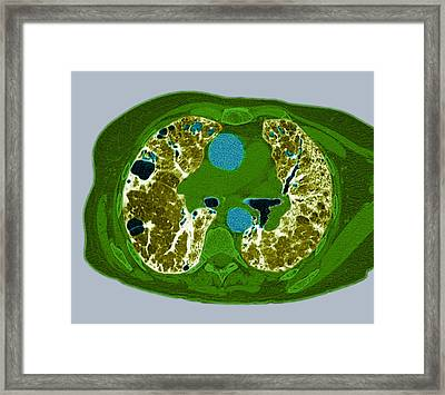 Lung Fibrosis, Ct Scan Framed Print