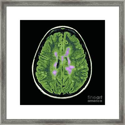 Mri Of Multiple Sclerosis Framed Print