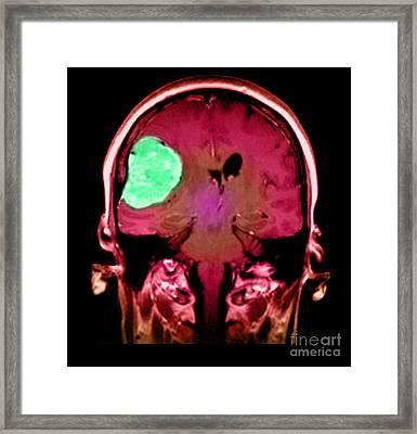 Right Sided Meningioma Framed Print by Medical Body Scans