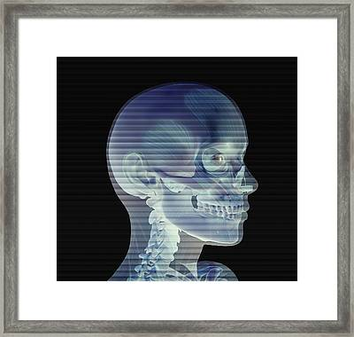 Skull Framed Print by Friedrich Saurer