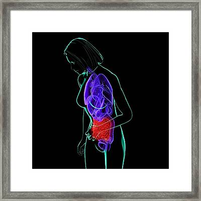 Abdominal Pain, Conceptual Artwork Framed Print