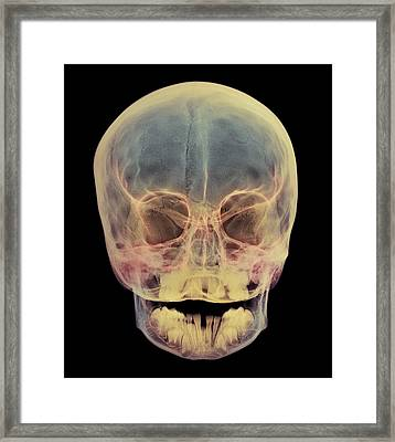 Child's Skull Framed Print by D. Roberts
