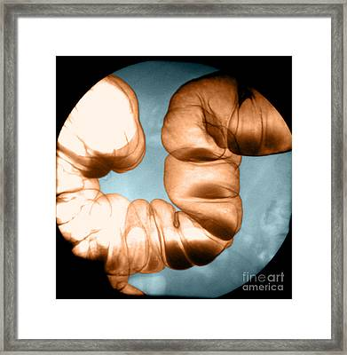 Normal Double Contrast Barium Enema Framed Print by Medical Body Scans