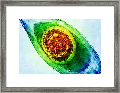 Trichinella In Muscle Lm Framed Print by Omikron