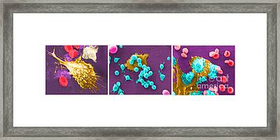 Cancer Cell Death Sequence, Sem Framed Print by Science Source