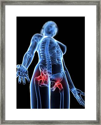 Hip Pain, Conceptual Artwork Framed Print by Sciepro