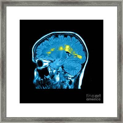Mri Of Multiple Sclerosis Framed Print by Medical Body Scans