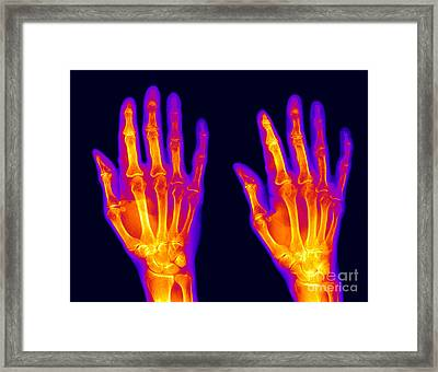 Normal Hand Framed Print by Ted Kinsman