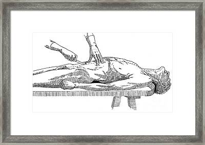 A Handbook Of Morbid Anatomy Framed Print