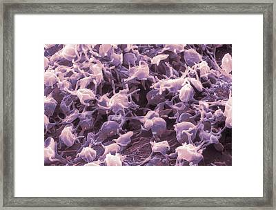 Activated Platelets, Sem Framed Print by Nibsc