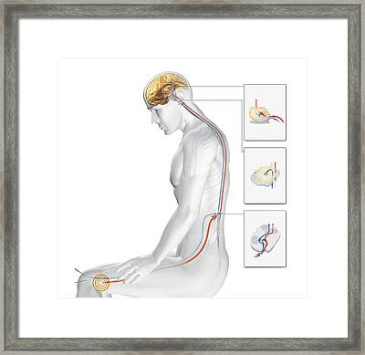 Acupuncture Framed Print by Claus Lunau