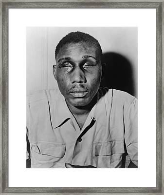 African American Man With Eyes Swollen Framed Print by Everett