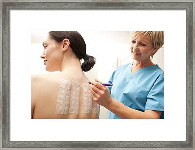 Allergy Patch Test Framed Print by