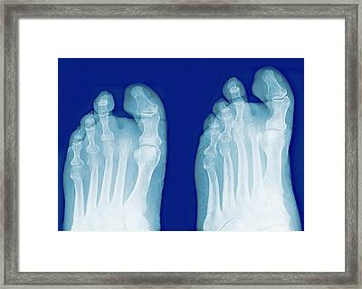 Amputated Toe, X-rays Framed Print