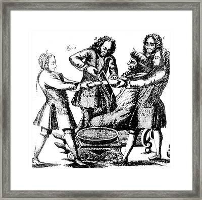 Amputation 1719 Framed Print by Science Source