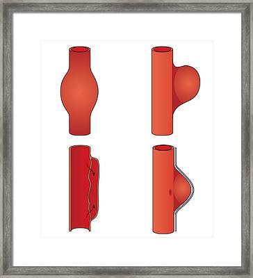 Aortic Aneurysm, Artwork Framed Print