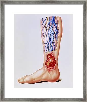 Artwork Of Varicose Veins & Ulcer On Leg Framed Print by John Bavosi