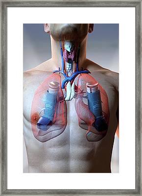 Asthma Framed Print by MedicalRF.com
