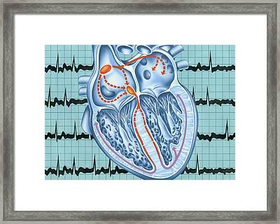 Atrial Fibrillation Framed Print by John Bavosi
