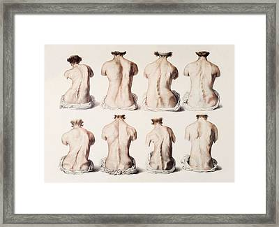 Back Deformities Framed Print by Mehau Kulyk