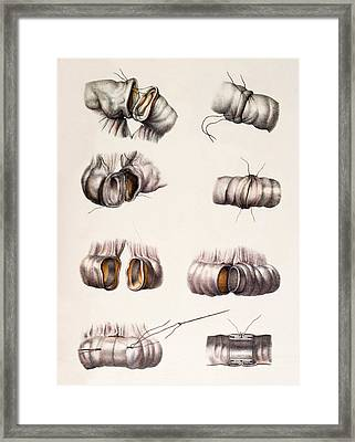 Bowel Surgery Framed Print by Mehau Kulyk