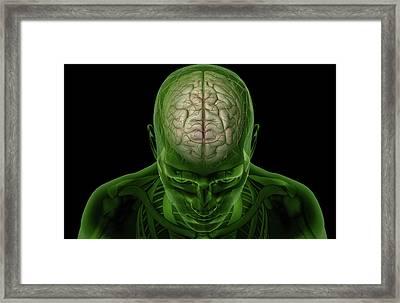 Brain Arteries Framed Print by MedicalRF.com