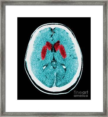 Brain Of A Cardiac Arrest Victim Framed Print by Medical Body Scans