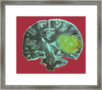 Brain Tumour Framed Print by Cnri