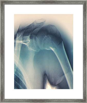 Broken Shoulder, X-ray Framed Print by Zephyr