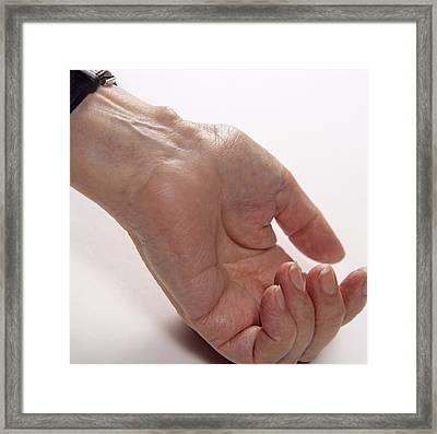 Bursa On Wrist Framed Print